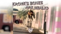 Krone's Bones are Healed!